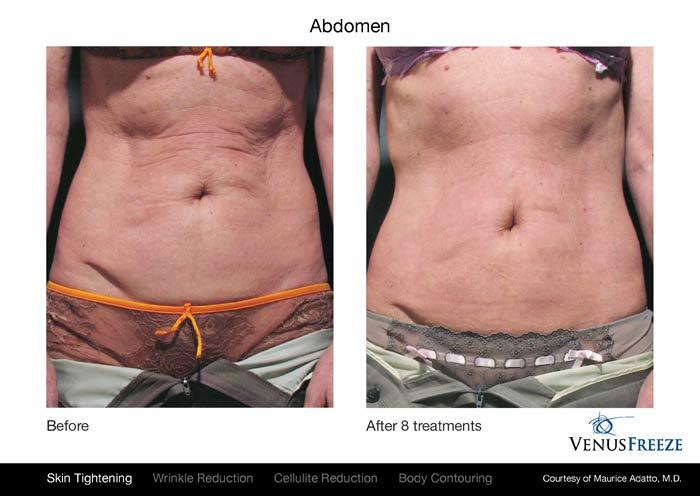 venus-freeze-abdomen